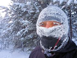 На праздниках в Сургуте с обморожением госпитализировали около 20 жителей
